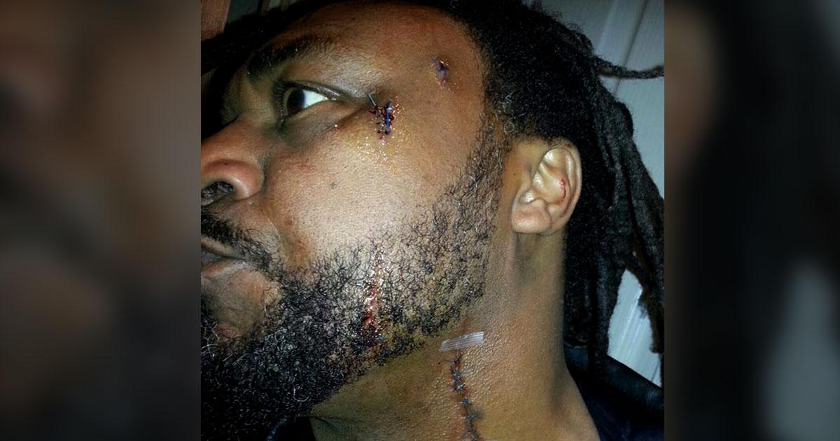 Apuñalan en el cuello y en la cara al vocalista de Skindred, Benji Webbe